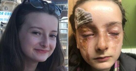 Garota fica com queimaduras graves após receita da internet